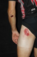 Road rash. Click photo for the back story.