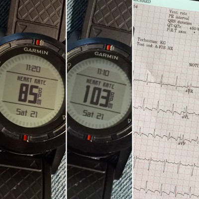 Variations of heart rate, monitored during my Afib phase with my own gear (and the EKG report shorty thereafter).